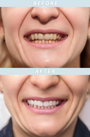 Woman teeth before and after dental treatment. Teeth Whitening. Happy smiling woman. Dental health concept, oral care, teeth restoration