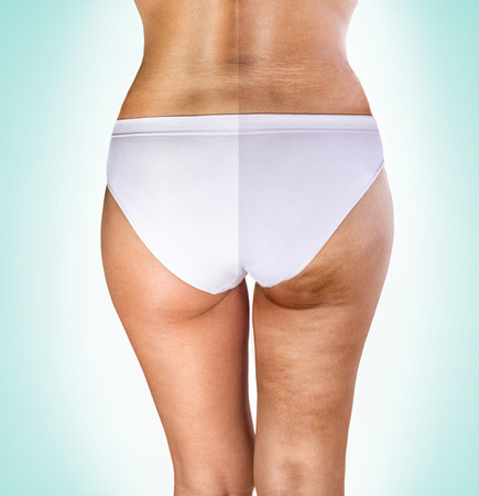 cellulite treatment, female buttocks before and after treatment Imagens