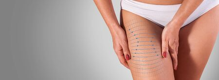 Healthy elastic skin on thigh,  perfect skin, stretchmark, concept of lifting skin. Fitness or plastic surgery and aesthetic cosmetology.