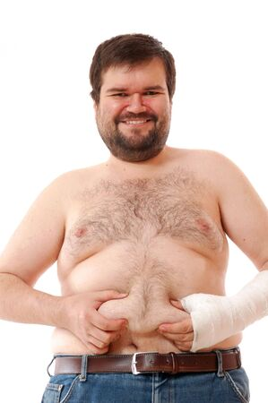 happy smiling big man with a broken arm touching his belly photo