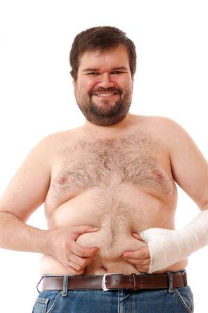 brazo roto: hombre de gran sonriente feliz con un brazo roto tocar su vientre Foto de archivo