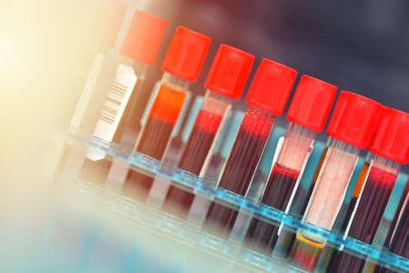 Tubes of blood sample for testing. Medical equipment