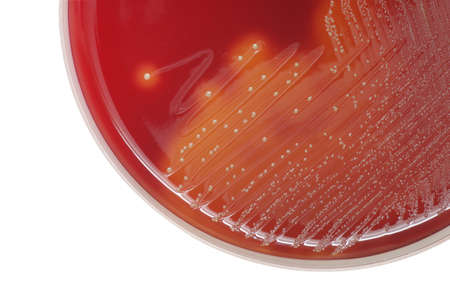 virulence: Streptococcus bacterial colonies with beta hemolytic on blood agar plate Stock Photo