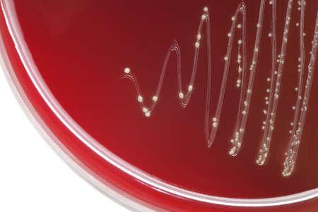 colonias de bacterias Streptococcus hemolítico con alfa en la placa de agar sangre Foto de archivo