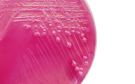 ecoli: E.coli bacterial colonies on MacConkey agar plate Stock Photo
