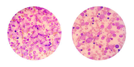 Microscopic views of a blood smear from leukemia patient show many abnormal white blood cells, cancer cells in their blood