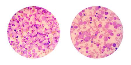 leucemia: vistas microscópicas de un frotis de sangre de paciente de leucemia muestran muchos glóbulos blancos anormales, las células cancerosas en la sangre Foto de archivo