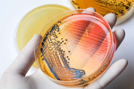 salmonella: Scientists hand in latex glove holding the bacteria growing petri dish (Salmonella species on SS agar, selective medium) , medical background Stock Photo