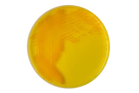 agar: Vibrio cholerae bacterial colonies on TCBS (Thiosulfate-citrate-bile salts-sucrose), selective medium agar plate isolated on white background