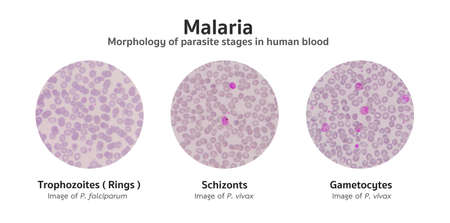 morphology: Microscopic examination of blood films from malaria infected patients showing the morphology of malaria parasite stages in human red blood cells. Trophozoites (rings), Schizonts, and Gametocytes. Stock Photo