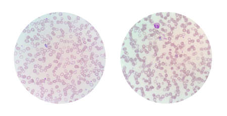 Microscopic views of a thin blood smear from malaria infected patient showing malarial stage in human red blood cells, intraerythrocytic life cycle of malaria parasite.
