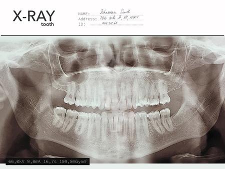 Xray dents bouche tomographie dentaire. Panorama oral de radiologie vectorielle aux rayons X. Fond de radiographie squelette médical