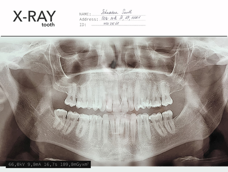Xray teeth mouth dental tomography. Vector X-ray radiology oral panorama. Medical skeleton x ray background