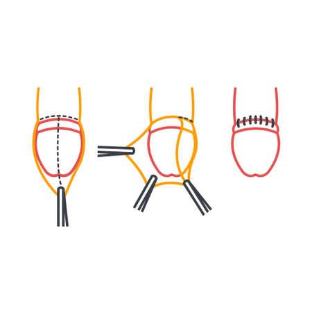 circumcision line icon, vector illustration Illustration