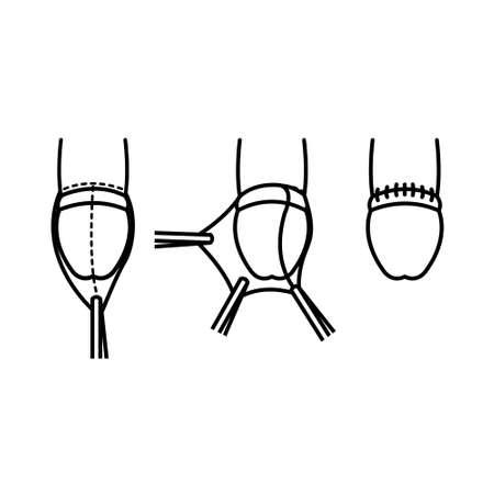 circumcision line icon, vector simple illustration 向量圖像