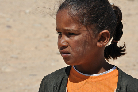 sunburnt: Egypt, Sinai Peninsula, Bedouin children, portrait of girl, sunburnt face, worn clothing, a sad look Editorial