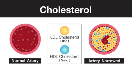 Cholesterol in artery, health risk , vector design