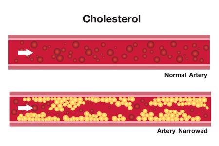 Cholesterol in artery, health risk , vector design Zdjęcie Seryjne - 120785658