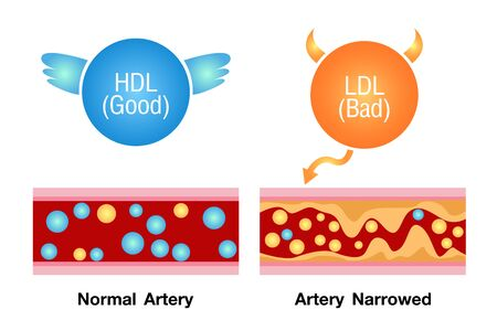 good and bad cholesterol , health risk , vector design