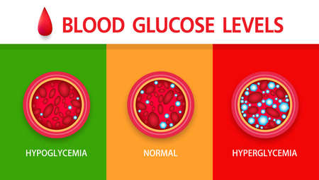 Hyperglycemia, High Blood Sugar and Diabetes ,obesity is a serious medical condition causes, vector design. Vectores