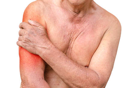 hardening: Senior man having shoulder pain,monochrome photo with red as a symbol for the hardening Stock Photo