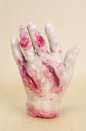 Hand with wounds and blood photo