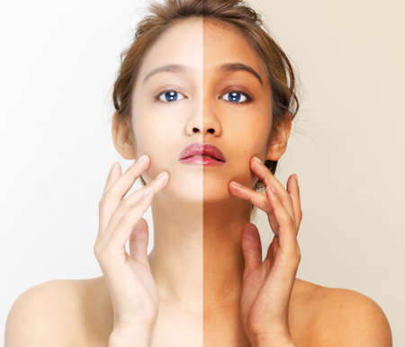 woman face with half sunburn and half sunscreen, beautiful girl of half latina and half asian