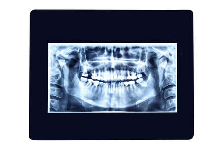 X-ray photo of teeth. Isolated on white background Stok Fotoğraf
