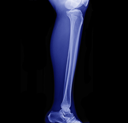x-ray image of leg side view , xray of normal leg bone in adult