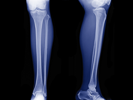 x-ray image of leg front view and side view , xray of normal leg bone in adult