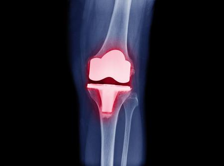 Röntgenbild der Vorderansicht der Knieendoprothetik / Knieendoprothese zeigt ein Metallgelenkimplantat bei knöchelfester Knie-Arthrose (OA-Knie)