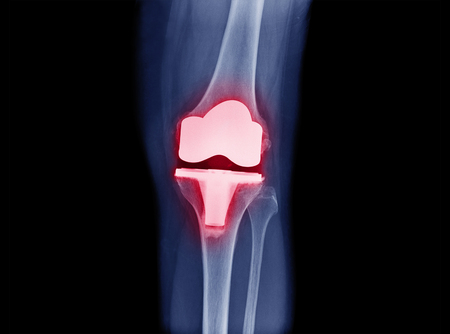 x-ray image of total knee arthroplasty / total knee replacement front view show metallic joint implant in bone fix knee Osteoarthritis (OA Knee)