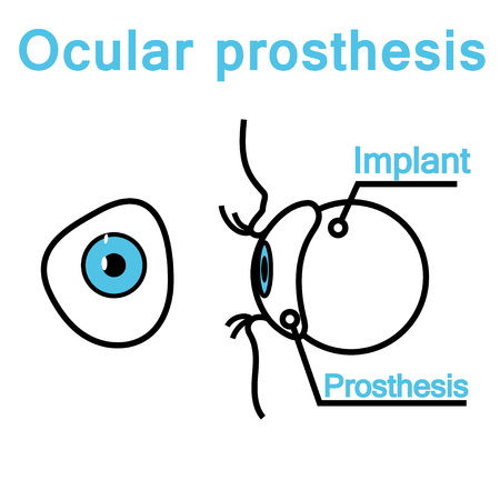 Front and side view of the ocular prosthesis