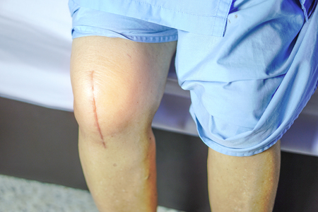 Scars Surgical Knee Surgery, Suture wound at knee Foto de archivo