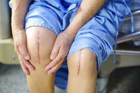 Une patiente asiatique âgée ou âgée montre ses cicatrices Remplacement chirurgical total de l'articulation du genou Arthroplastie chirurgicale de la plaie de suture sur le lit dans la salle d'hôpital de soins infirmiers : concept médical solide et sain. Banque d'images