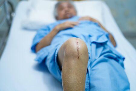 Asiatische ältere oder ältere alte Dame Patientin zeigt ihre Narben chirurgischer totaler Kniegelenkersatz Nahtchirurgie-Arthroplastik auf dem Bett in der Krankenstation: gesundes, starkes medizinisches Konzept. Standard-Bild