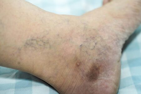 Asian office worker man with Varicose veins at his leg.