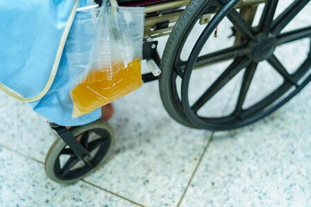 Asian middle-aged lady woman patient sitting on wheelchair with urine bag in the hospital ward : healthy medical concept Archivio Fotografico