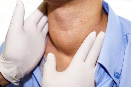 Paciente mujer asiática tiene agrandamiento anormal de la glándula tiroides Hipertiroidismo (tiroides hiperactiva) en la garganta: concepto médico fuerte y saludable