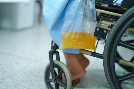 Asian middle-aged lady woman patient sitting on wheelchair with urine bag in the hospital ward : healthy medical concept Reklamní fotografie