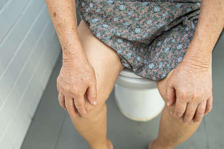 Asian senior or elderly old lady woman patient sitting on flush toilet to clean before and after use.
