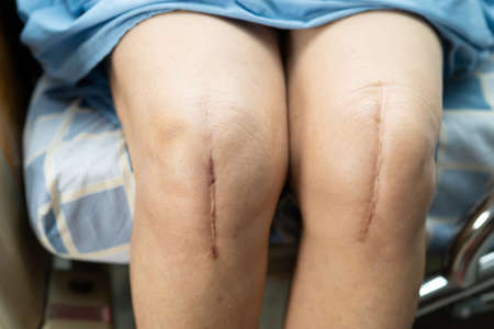 Asian senior or elderly old lady woman patient show her scars surgical total knee joint replacement Suture wound surgery arthroplasty on bed in nursing hospital ward, healthy strong medical concept.