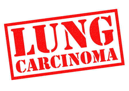 carcinoma: LUNG CARCINOMA red Rubber Stamp over a white background.