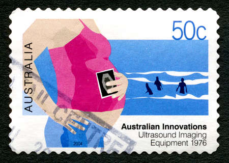 AUSTRALIA - CIRCA 2004: A used postage stamp from Australia, celebrating Australian Innovations - this one commemorating Ultrasound Imaging Equipment, circa 2004.
