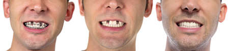 Man with cured teeth on white background Stock Photo