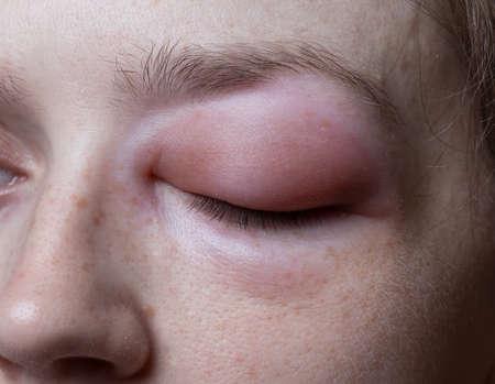 pokrzywka: Młoda kobieta z reakcją alergiczną na oko Zdjęcie Seryjne