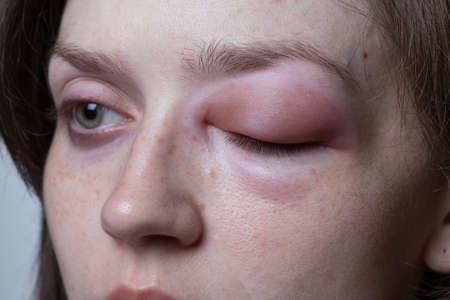 Young woman with allergic reaction - angioedema