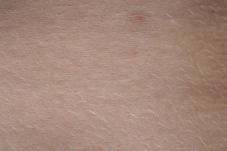 Macro photo of the young pink humans skin with nevus