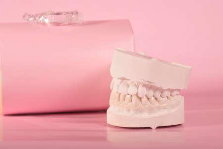 dental splint for bruxism