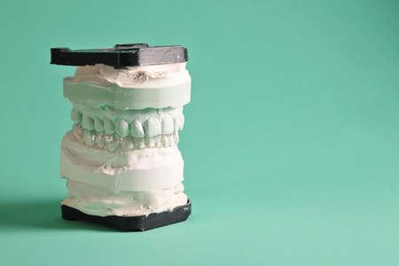 splint on plaster model Standard-Bild